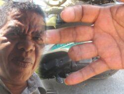 Jari manis Wartawan Kompas Terpotong Ditebus Rp 18 juta