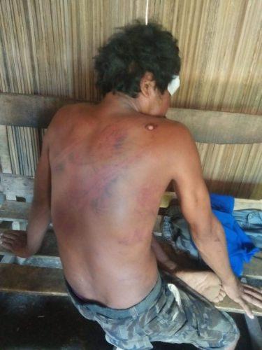 Kapolres Kupang Minta Kapolsek Kupang Tengah Tuntaskan Kasus Penganiayaan BM