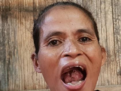Kisah Miris Maria Ursula adal Maumere Idap Tumor Lidah hingga Tak Bisa Mengunyah
